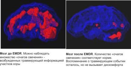 Мозг до и после ДПДГ